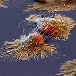 cáncer-detección